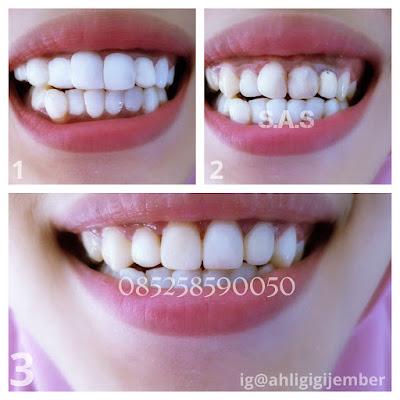 Foto hasil perbakan dan veneer gigi keropos hitam dan miring sas ahli gigi pati