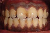 Dişeti renklenmesi tedavisi