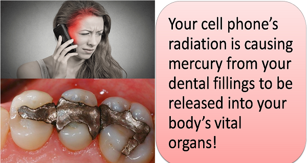 Cell Phones Destroy Your Tooth Fillings And Release Poison Into Your Blood  Mobile-Phones-and-Amalgam-Fillings