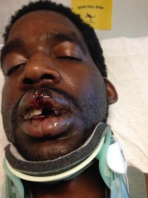 Cordero Caples with a broken neck, missing teeth, and horrific burns
