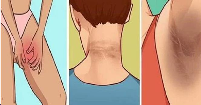 Remove Dark Areas In The Neck