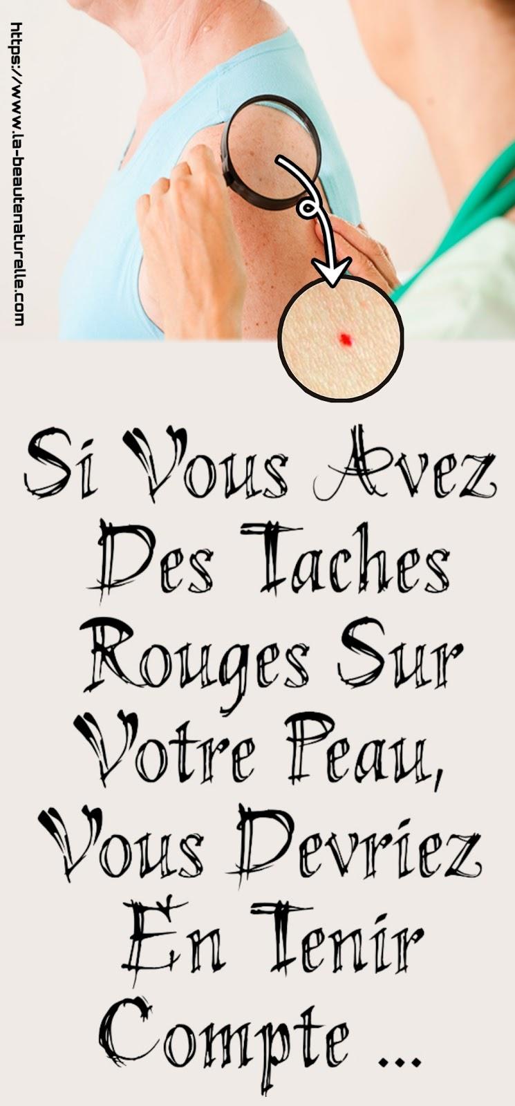 Si Vous Avez Des Taches Rouges Sur Votre Peau, Vous Devriez En Tenir Compte ...