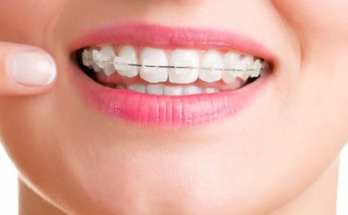 Kết quả hình ảnh cho niềng răng sử dụng một cơ chế trượt để