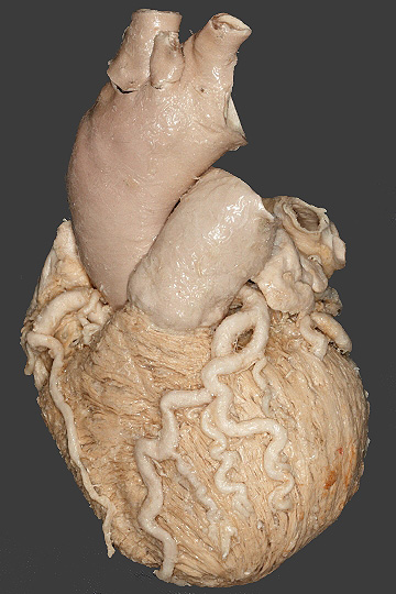 Cardiology Made Simple: Basic Heart Anatomy- The Four Chambers