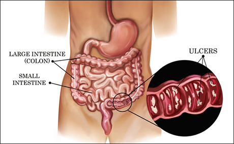 cure ulcerative colitis permanently