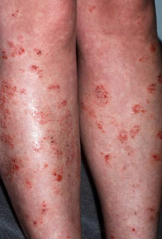 Atopic eczema adults, busty asian on train videos