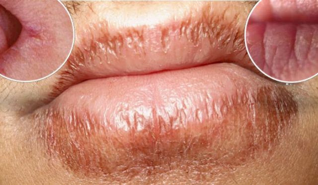 The 1 Ingredient Remedy That Cured My Dry, Painful, Cracked Lips FOR GOOD!