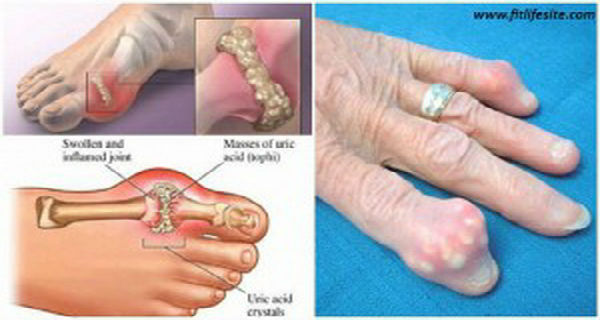 How To Quickly Remove Uric Acid Crystallization From Your Body To Prevent Gout And Joint Pain