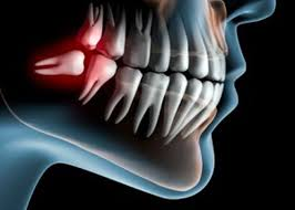 Cost of wisdom teeth removal