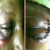 DOMESTIC VIOLENCE: Woman Who Almost Got Blinded By Her Abusive Husband in Lagos Recovers From Severe Injury!