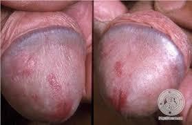 bagaimana cara mengobati luka sakit di penis