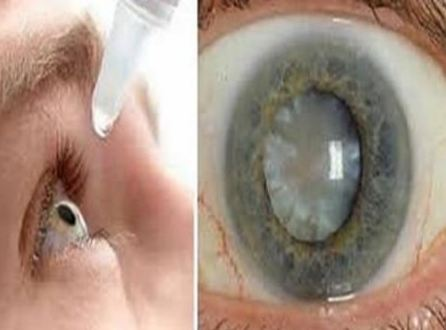 Eureka! A New And Effective Treatment For Cataracts Has Been Discovered!