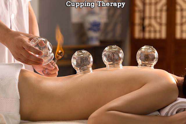 Cupping Therapy 20 min $25, 1 hour 20 min Cupping/Full Body Massage $70, 30 min Cellulite Cupping $30