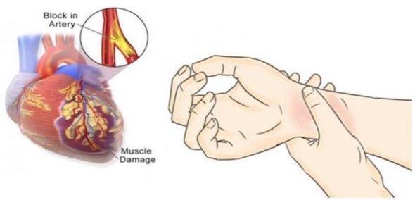 80% din atacurile de cord pot fi prevenite daca se respecta urmatoarele 5 masuri