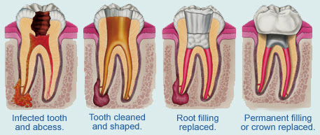 Root Canal Treatment - A Glamorous New Smile