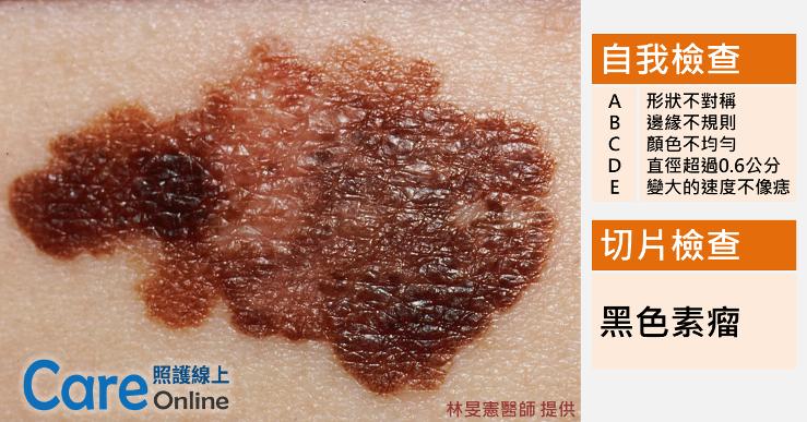 melanoma黑色素瘤自我檢查-照護線上