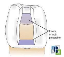 الجدار الأرضي في تحضير الأسنان