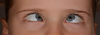 Strabismus (crossed eyes) - Cause and Treatment