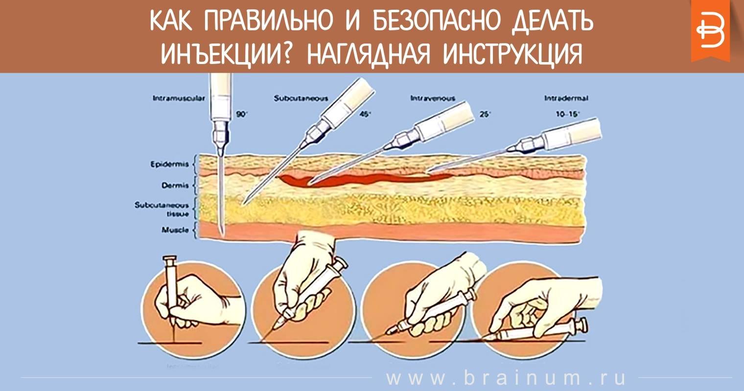 Как правильно и безопасно делать инъекции? Наглядная ...