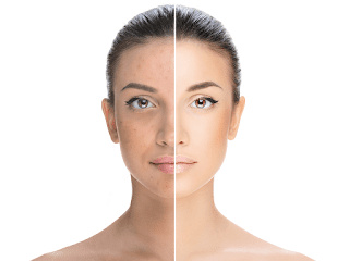 Treat Acne Scarring Perfectly with Acne Scar Removal Las Vegas