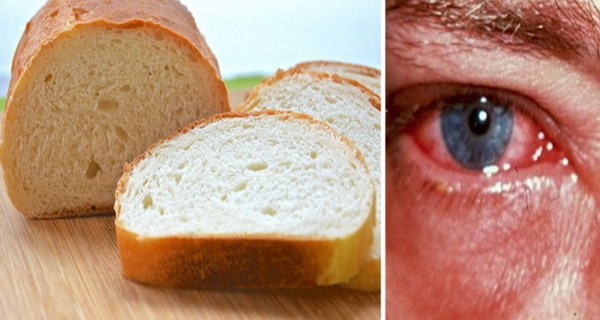 painea strica vederea