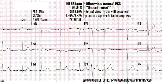 Besides the Nonspecific T-wave Inversion in aVL, What Else is Abnormal on this ECG?