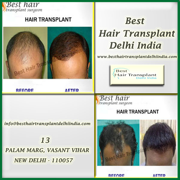 FUT hair transplant Delhi, FUE hair transplant in Delhi, scalp reduction surgery cost in India, hair transplant surgery India It goes without saying that losing hair is an extremely traumatic experience for all and sundry. However, the moment you get to know that there is a ray of hope for you to get your hair back; it appears nothing short of a miracle. Over the last few years, there have emerged several methods of restoring hair. There are different types of hair transplant procedures which can be your key to regain hair. If you are considering hair transplant surgery India then FUT, FUE and scalp reduction make for the most popular methods.  FUE  Also known as Follicular Unit Extraction, it is counted among the most advanced and modern techniques hair transplantation. It assured complete natural look. It is far more sophisticated technique of treating hair loss. It is one of the main reasons you should choose surgeon with great care for FUE hair transplant in Delhi. In this procedure, no incisions are made which means no scars and sutures.  FUT  Follicular Unit Transplant, also known as strip surgery, is one of the most commonly performed procedures for treating hair loss and is considered as an ideal choice for those who have large areas of baldness. In this method, skin parts having hair is removed making use of scalpel from the back of the head and then hair is transplanted at the bald area. FUT hair transplant Delhi can help you regain hair growth in the most effective way possible.  Scalp reduction surgery  It is a surgical treatment for removing parts of the scalp which get affected by alopecia. The main purpose is to reduce the overall area of the bald skin.Then the healthier parts of the scalp are stretched and re-positioned which makes the bald area manageable and smaller. You can find out about the scalp reduction surgery cost in India by consulting a hair transplant surgeon and make the right decision.  Please call our patient co-ordinator or fill the online appointment form, to get an exact cost of your hair transplant surgery. For further details and expert advice call us on 9958221983 or visit our clinic at www.besthairtransplantdelhiindia.com  13A, Palam Marg, Vasant Vihar, NEW DELHI-110057 (INDIA) Mobile: +91-9958221983 Mail: info@besthairtransplantsurgeon.com Tag: FUT hair transplant Delhi, FUE hair transplant in Delhi, scalp reduction surgery cost in India, hair transplant surgery India