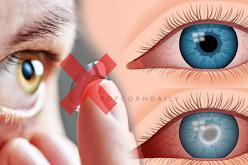 Gefahren von Kontaktlinsen: Gefährdet Ihre Augen / Ihr Tragen