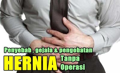 Pengobatan Alternatif Hernia Tanpa Operasi