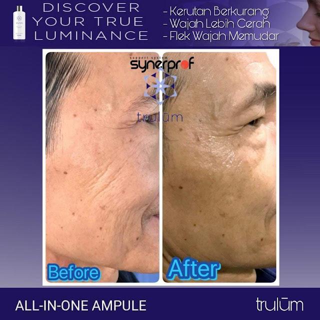 Bebas Bopeng Bekas Jerawat, Flek Hitam Tanpa Harus Laser Atau Ke Tempat Skin Care Di Ayamaru Barat Maybrat