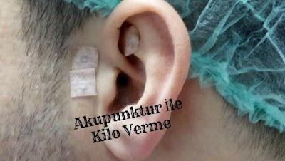 Kulakta Akupunktur (14 Günlük Diyet Listesi)