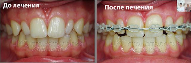лечение шиповидных зубов
