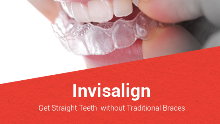 how to straighten teeth without wearing braces english language essay My own mother spent more than 20 years fixing other people's teeth in china and the united states before one of her friends, a orthodontist, offered to get her braces.