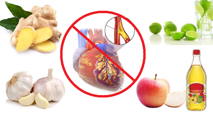 How to cure coronary artery disease naturally   How to Lose
