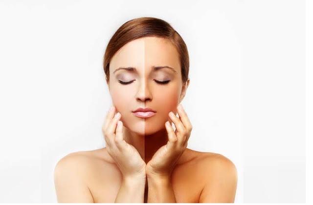 Best Skin Whitening Home Remedies Get Fair Skin Naturally. Natural Skin Lightening Treatment