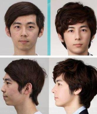 Begini Wajah Asli Mereka Sebelum Operasi Plastik