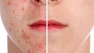 Les taches de rousseur ou la pigmentation