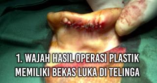 Wajah hasil Operasi Plastik memiliki bekas luka di telinga
