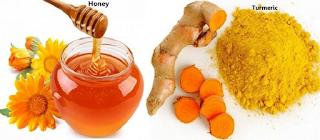menghilangkan jerawat dengan kunyit atau kunir dan madu, cara menghilangkan jerawat dengan bahan herbal