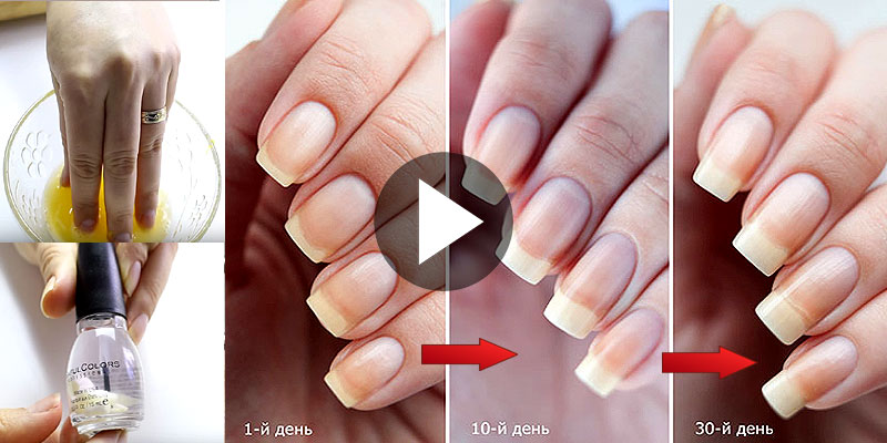 Hello Everyone In This Video I Share Several Tips And Home Remes To Grow Your Nails Fast How Whiten So Just Have A Look At