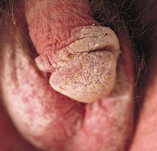 Crusted scabies in a male genitalia scabies rash images