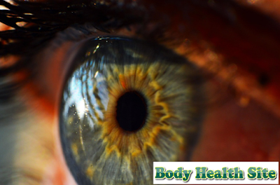 Understanding Keratitis, Symptoms, Treatment, Causes, Diagnosis, Complications and Prevention