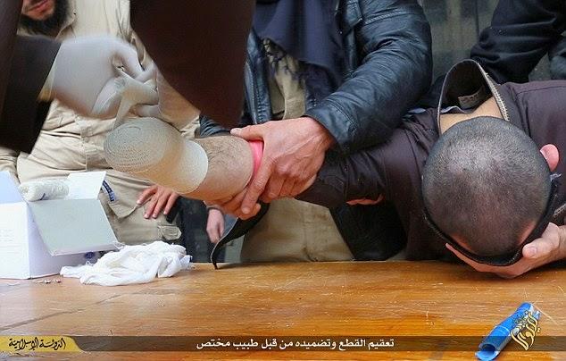 ISIS: šokantna  amputacija ruke