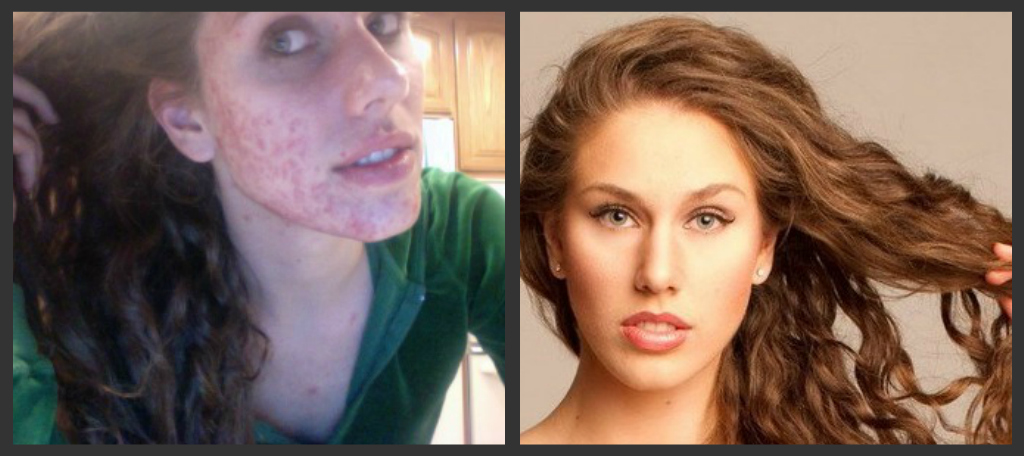 A Model\'s Secrets: Best Way to Hide and Conceal Pimples and Acne!