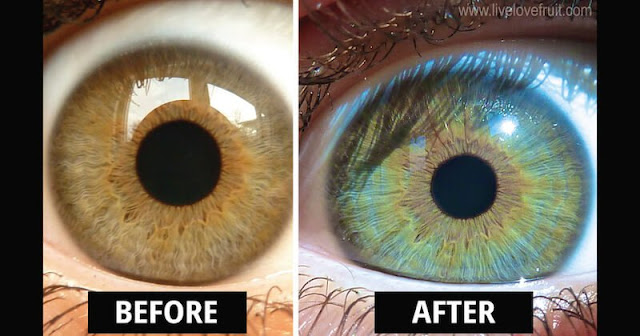 How Raw Food Diet Entirely Changed This Woman's Eye Color!