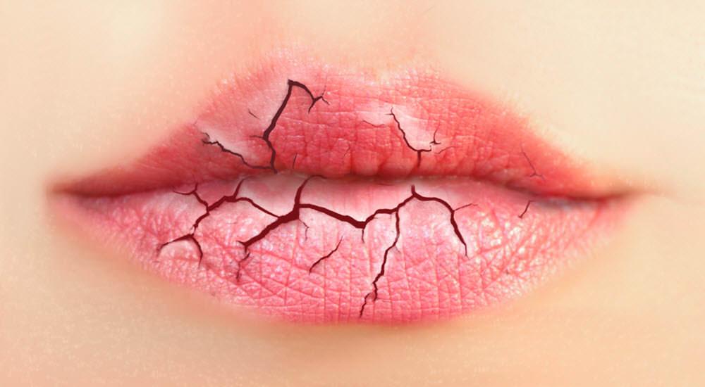 lábios ressecados