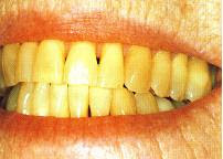 Tips Mengatasi Masalah Gigi Kuning, gigi kuning, petua gigi putih