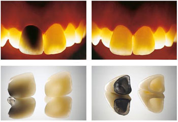 showing differance between metal free zirconia and PFM