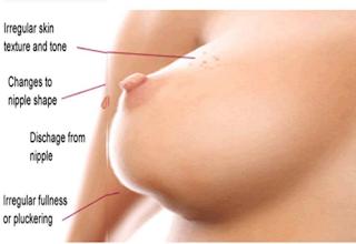biaya pengobatan kanker payudara di singapura, kanker payudara menurut riskesdas, obat alami untuk menyembuhkan penyakit kanker payudara, gejala awal mula kanker payudara, tanaman obat buat kanker payudara, obat tradisional pengobatan kanker payudara, terapi herbal untuk kanker payudara, ciri penyakit kanker payudara pada pria, ramuan herbal mencegah kanker payudara, kanker payudara rima melati, gejala awal yg dirasakan penderita kanker payudara, pengobatan kanker payudara medis, jual obat tradisional kanker payudara, pengobatan kanker payudara secara tradisional, kanker payudara stadium 3 bisa disembuhkan, obat kanker payudara yang alami, kanker payudara adalah ppt, pengobatan kanker payudara stadium lanjut, gejala awal sakit kanker payudara, mengobati kanker payudarah, pengobatan kanker payudara di rumah sakit, obat tradisional kanker ganas payudara, ciri kanker payudara jinak, mengobati kanker payudara dengan bekam, kanker payudara gejala penyebab, obat herbal pasca operasi kanker payudara, cara membuat obat kanker payudara dari daun sirsak