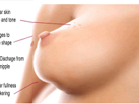 Kulit Manggis Untuk Pengobatan Kanker Payudara